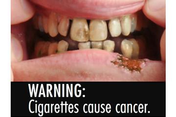 진정한 국민건강 증진을 위해 담뱃갑 경고그림 반드시 도입해야
